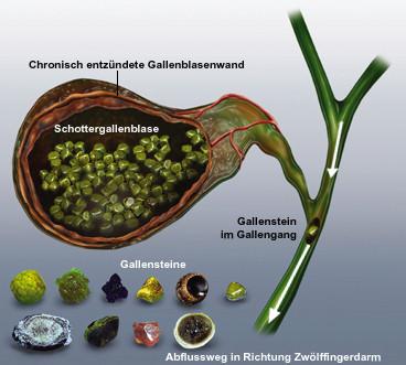 Gallensteine Im Gallengang Ohne Gallenblase